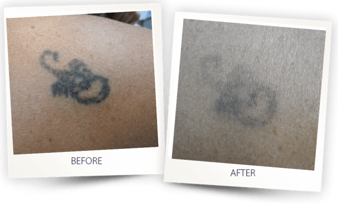 Tatto removal with PICO CLEAR