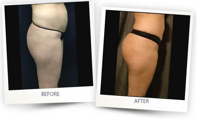buttock Fat Transfer