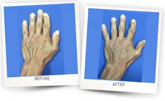 Fat grafting - hands