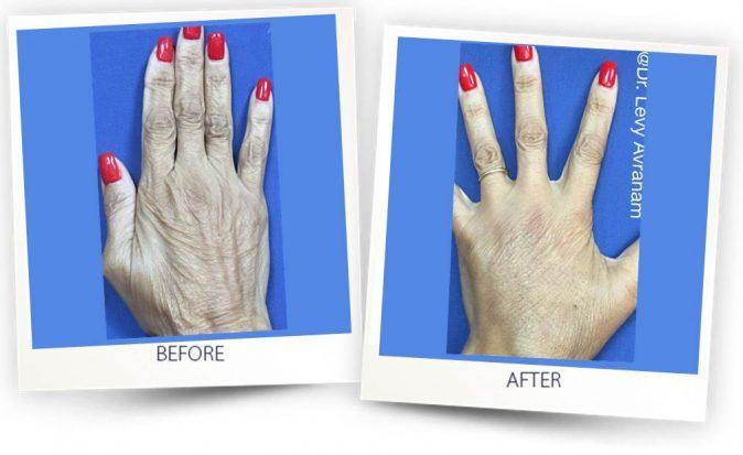fat transplantation to hands