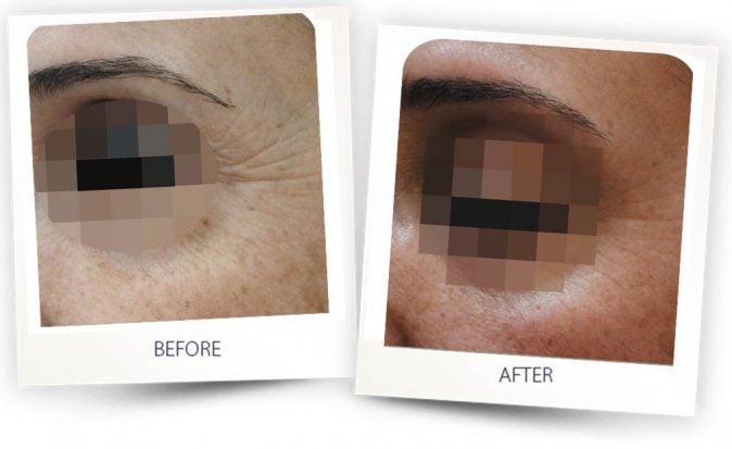 Remodelación de la piel