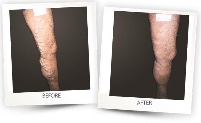 Antes y después | VascuLife